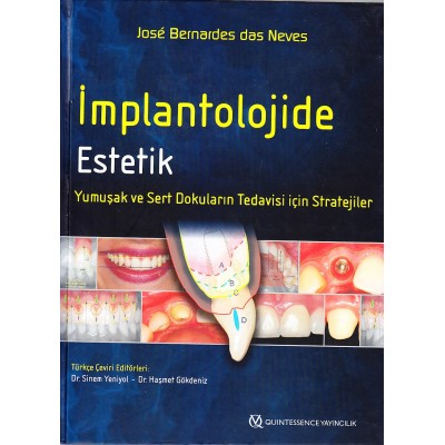 İmplantolojide Estetik - Yumuşak ve Sert Dokuların Tedavisi için Stratejiler