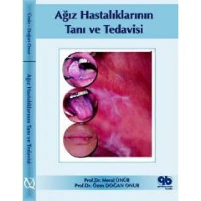 Ağız Hastalıklarının Tanı ve Tedavisi