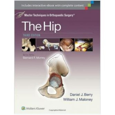 The Hip Master Techniques in Orthopaedic Surgery: Third Edition