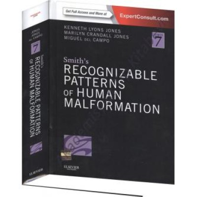 Smith's Recognizable Patterns of Human Malformation, 7th Edition