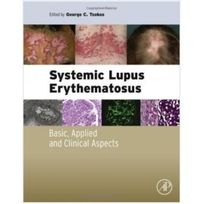 Systemic Lupus Erythematosus: Basic, Applied and Clinical Aspects 1st Edition