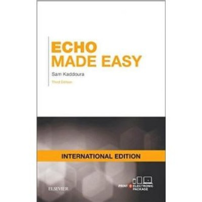 Echo Made Easy Paperback