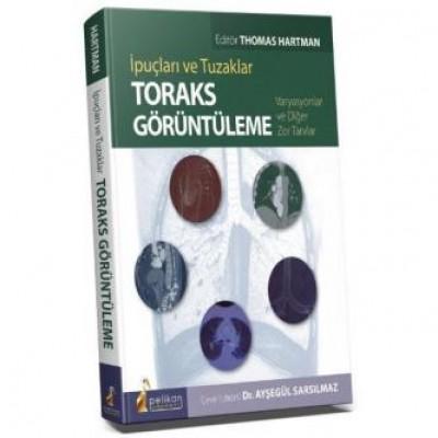 İpuçları ve Tuzaklar Toraks Görüntüleme Varyasyonlar ve Diğer Zor Tanılar