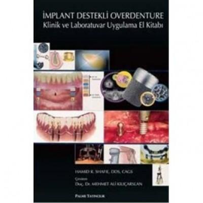 İmplant Destekli Overdenture Klinik ve Laboratuvar Uygulama El Kitabı