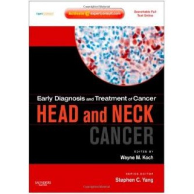 Early Diagnosis and Treatment of Cancer Series: Head and Neck Cancers