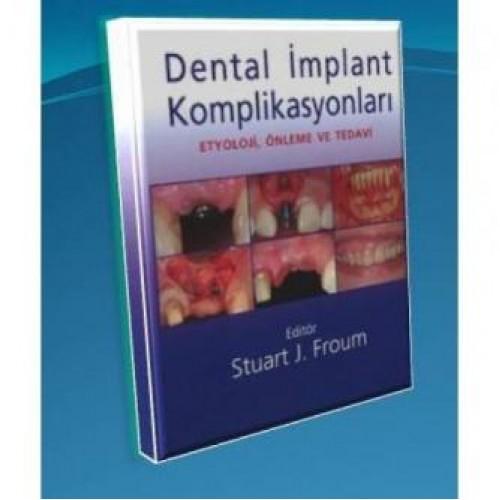 Dental İmplant Komplikasyonları