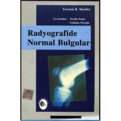 Radyografide Normal Bulgular