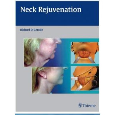 Neck Rejuvenation 1st Edition